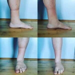 Lymfødem - før og efter behandling med YourBoots